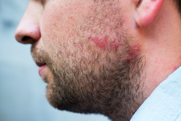 Rash reaction from drug or food allergy on face of caucasian man