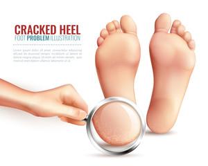 Cracked Heels Illustration