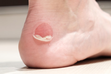 Big bloody callus on man's heel