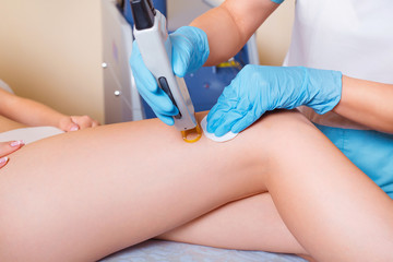 Laser epilation and cosmetology. Hair removal depilation procedure close up. Cosmetology and SPA concept.