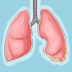 Lung and cancer. Medicine vector illustration. Cartoon style