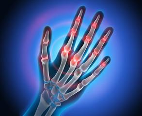 Arthritis in Fingergelenken 2