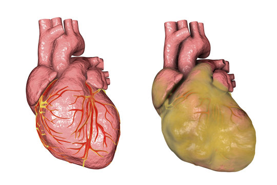 Healthy and obese heart with left ventricular hypertrophy isolated on white background, 3D illustration