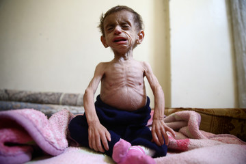 A Picture and its Story: 'At the doors of starvation:' siege chokes Damascus suburbs