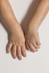Scarlet fever. Two children's hands with rash on white background.