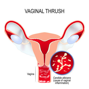 Vaginal yeast infection and Candida albicans