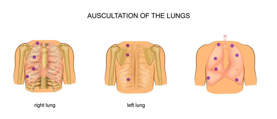 auscultation of the lungs