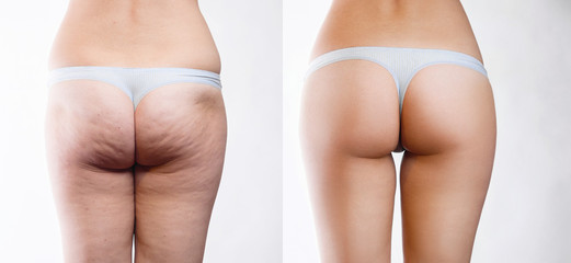 Female buttocks with cellulite before and after