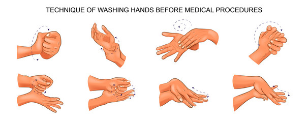 washing hands before medical procedures