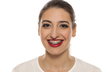 Young smiling woman with braces on white background