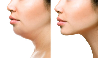 Part of face, woman with the double and perfect chin