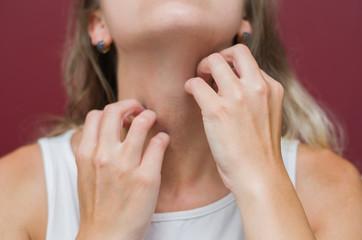 Ótimo conceito de alergia, coceira no corpo, mulher coçando parte do corpo