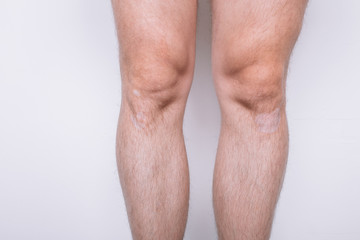 body part: hairy legs young man. stains and birthmarks on the skin. slender legs after exercise. posing on a white textured background