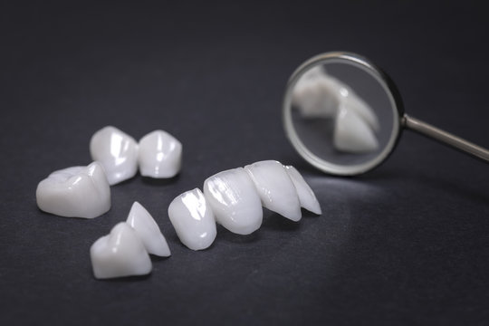 Dental mirror and zircon dentures on a dark background - Ceramic veneers - lumineers