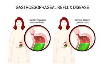 Gastroesophageal reflux disease. gerd