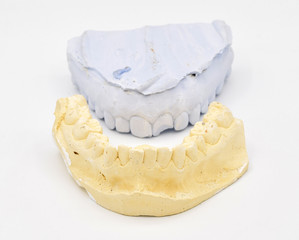 Plaster tooth molds arranged on seamless white background
