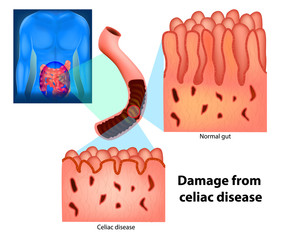 Damage from celiac disease. Celiac disease and Normal gut. Celiac disease affected small intestine villi.