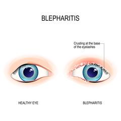 Eyes of human. Blepharitis. Crusting at the eyelid margins