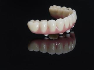 Complete lower prosthesis dental screwed over black glass.