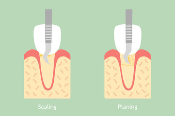 teeth scaling - dental plaque removal, anatomy structure including the bone and gum