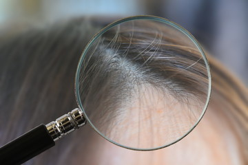 Closeup head with hair and scalp
