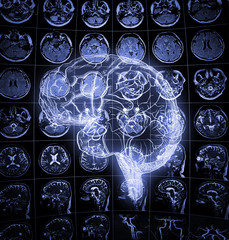 Luminous drawing of human brain on the background of human head scan