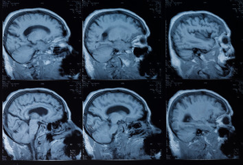 Head MRT. MR image of human brain