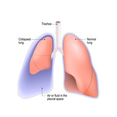 Collapsed lung. pneumothorax, or pleural effusion, or empyema