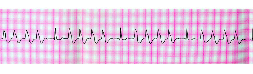 Tape ECG with group ventricular extrasystoles