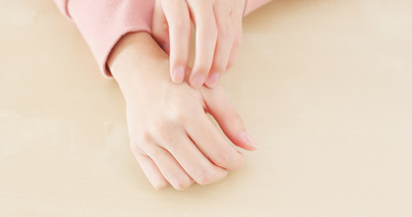 Woman suffer from hand allergy