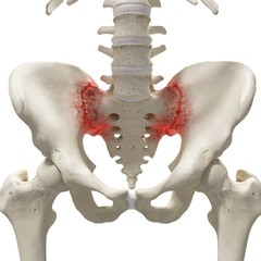 Arthritis in the sacrum, illustration