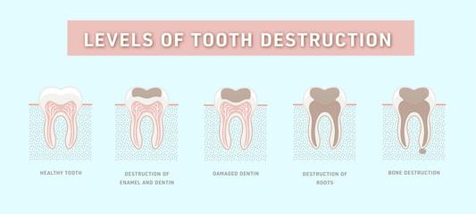 Zestaw zębów, poziomy niszczenia zęba. Prosta grafika, wector ilustracja Ai / EPS 10