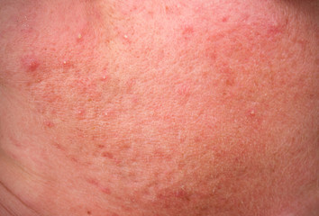 rosacea skin disease on the face