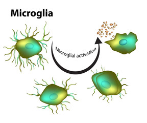 Activation of microglia.