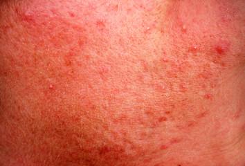 rosacea skin disease on the face