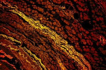Muscular atrophy of human skeletal muscle