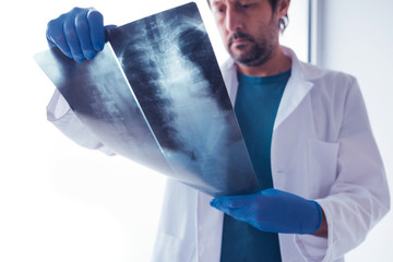 Doctor examining x-ray of the human spine