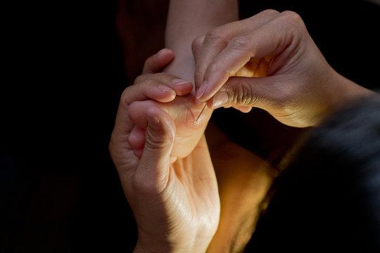 splinter of wood in my toe