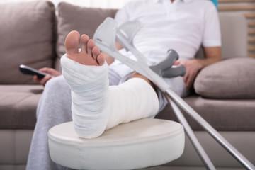Man With Broken Leg Sitting On Sofa