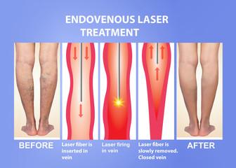 Varicose Veins and laser