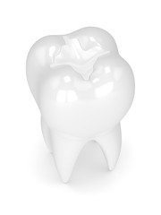 3d render of tooth with dental composite filling