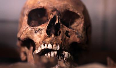 human skull - criminology museum detail