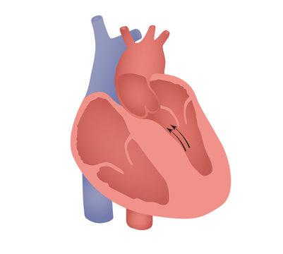 Non-obstructive septal cardiomyopathy illustration
