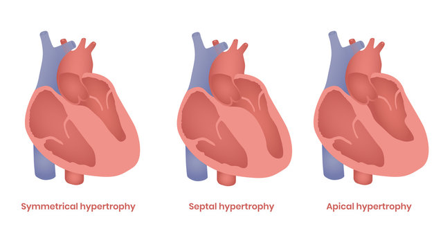 Hypertrophic Cardiomyopathy illustration. Apical, septal and symmetrical types
