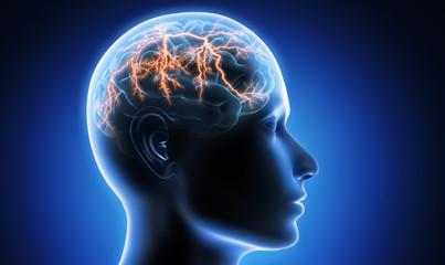 Migräneanfall - Kopfschmerz
