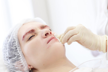 Cosmetologist gives patient filler injection - Real surgery