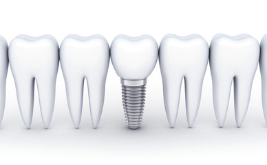 Dental row and one implant