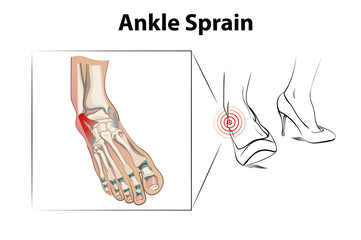 Ankle sprain is a injury from wearing high heels