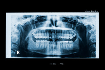 Adult woman panoramic dental x-ray