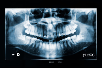 Adult woman panoramic dental x-ray, image of teeth and mouth with both lower wisdom teeth